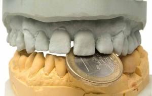 dentisti-all-estero-tariffe