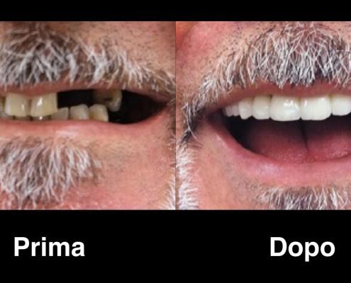 dentisti-croazia