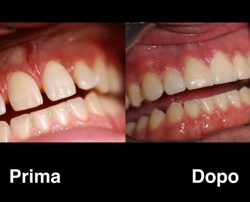 dentisti polonia