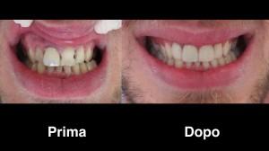 dentisi-albania